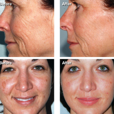 PMD Personal Microderm: Does It Work? #pmdfriends