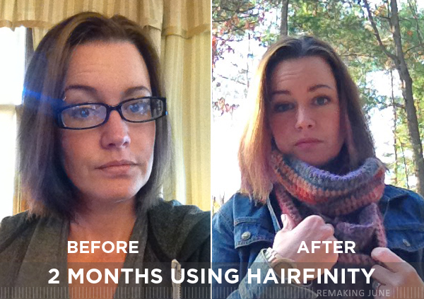 hairfinity before after 2 months
