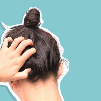 HOW TO CALM ITCHY WINTER SCALP