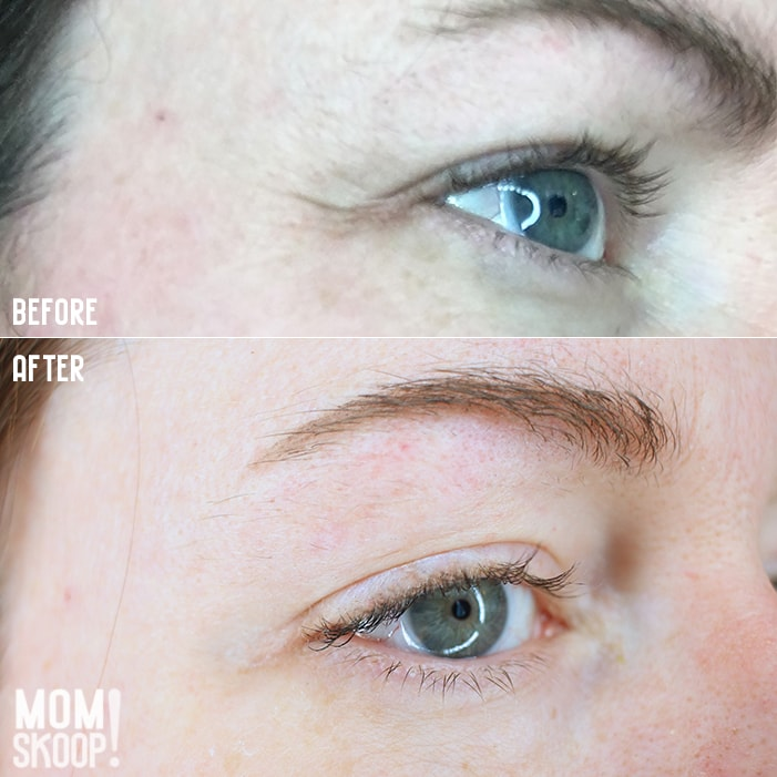 Non-Surgical Eye Lift before after