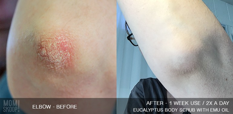 simple sugars before and after eczema